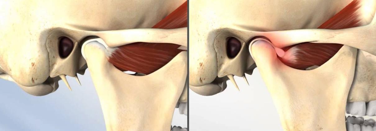 Temporomandibular Joint Syndrome Tmj Causes Symptoms
